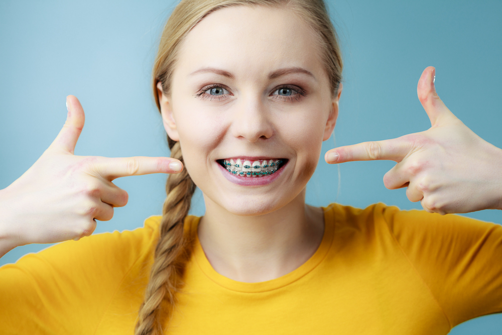 Dentist and orthodontist concept. Young woman teen girl smiling pointing with fingers on teeth with braces, on blue